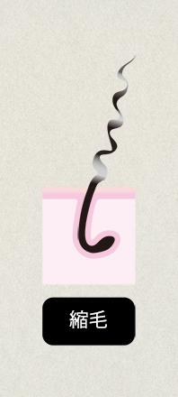 クセ毛タイプ3:縮毛
