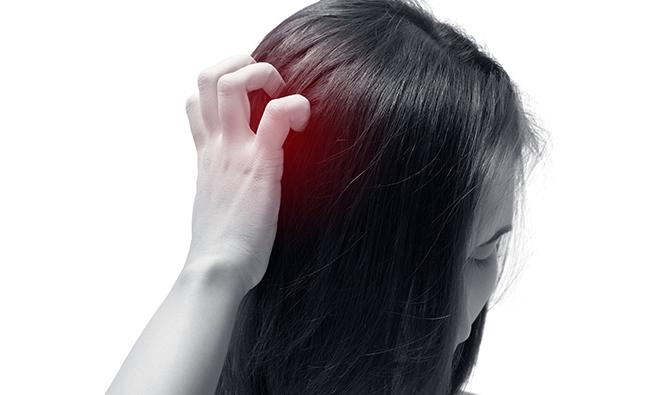 起こりやすい頭皮トラブル