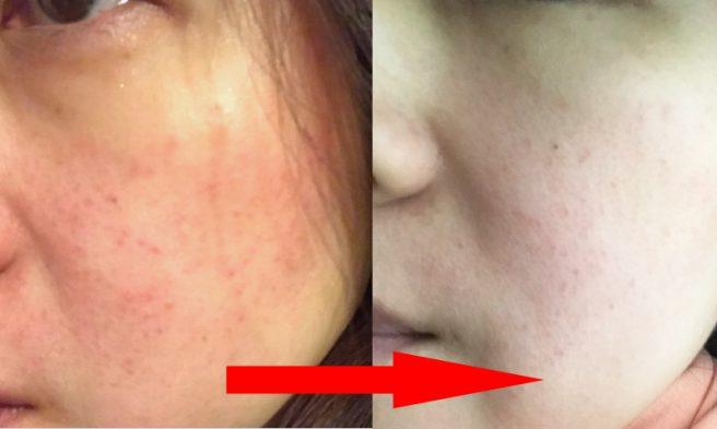 朝の洗顔を変えたら肌キレイ オルタナ タイムマネージメントフォーム センシティブ